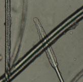 Трихоскопия - катаген (корень имеет форму кисти, окруженной стекловидной оболочкой)