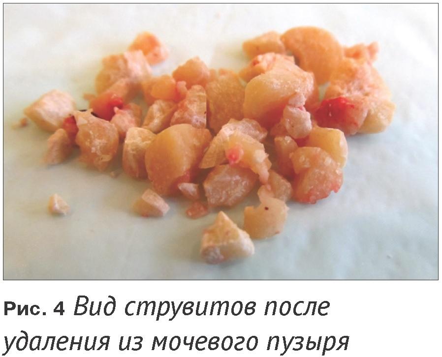 Что такое оксалатные камни у котов