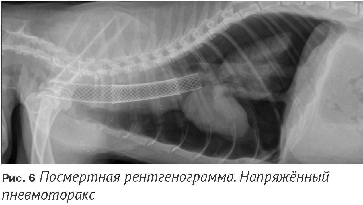 Посмертная рентгенограмма