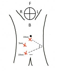 Лапароскопическая колонопексия: техника выполнения