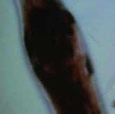 Фолликулярная дисплазия (алопеция разбавленного цвета), деформация стержня волоса, аномальные гранулы меланина